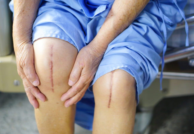 Knee Replacement Surgery If Needed Should Be Done Sooner